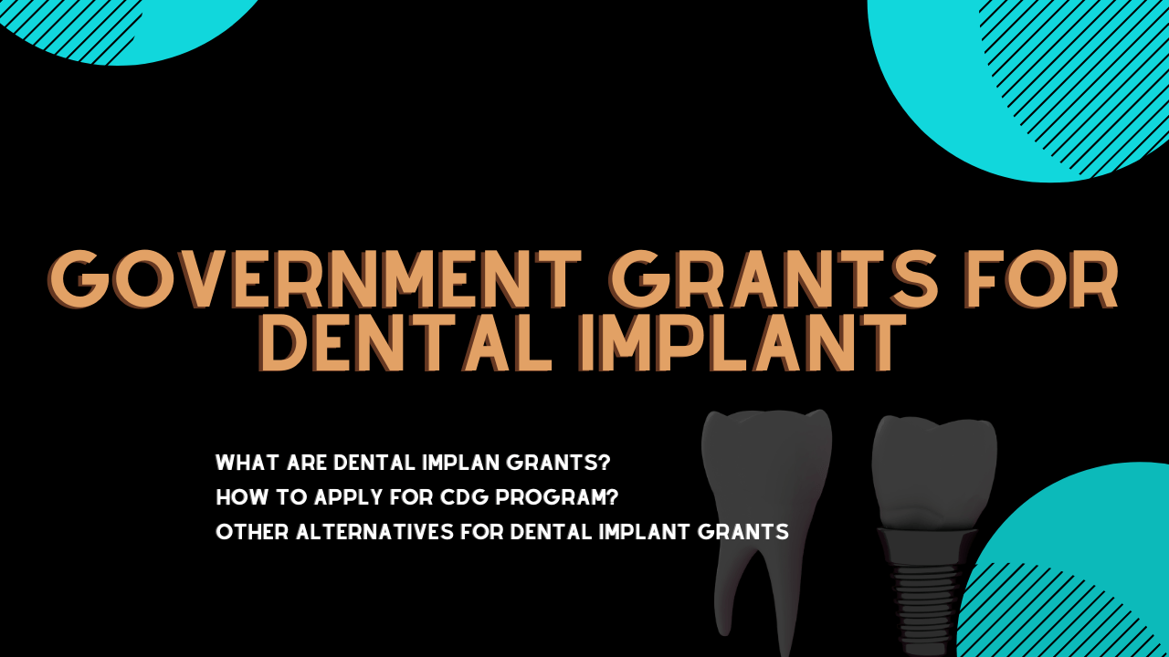 Government Grants For Dental Implant